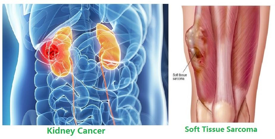 阿法替尼治疗非小细胞肺癌脑转移或软脑膜病患者中的疗效